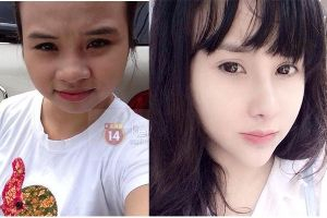Average looking Vietnamese girl transforms into a hot girl. Plastic surgery she is doing it right!