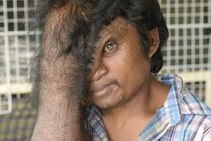 Photos Of Man From Cambodia With Abnormal Face Is Going Viral on The Internet! (7 pics)