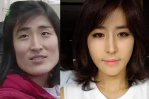 10 shocking surgery transformations in Korea. I bet they dont even recognise themselves after surgeries