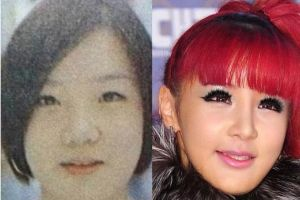 Has plastic surgery ruined 2NE1 Park Bom`s natural beauty? and does she look `weird` now? (18 pics)