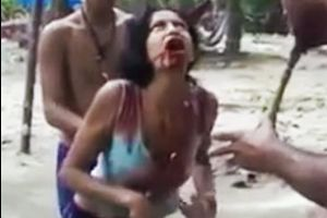 WTF of the day! They Thought This Girl Was Sick. When They Tried To Help Her, The Most Horrifying Thing Happens.