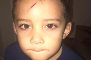 Mom fixes son`s cut in the best and coolest way possible (6 Photos)