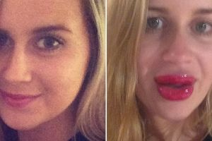 Woman Tries To Get Lips Like Kylie Jenner And It Goes Horribly Wrong