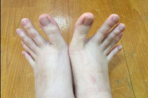 This Woman`s Toes Look Just Like Fingers And The Internet Is Losing It (5 pics)