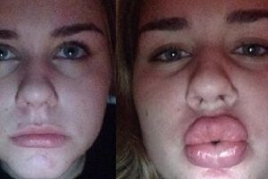 Girls Use A Water Bottle To Get Kylie Jenner Lips And Fail Miserably (Photos)