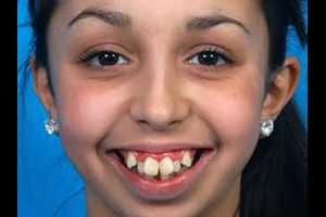 Girl Had A Life-Changing Jaw Surgery And Her Transformation Is Amazing (8 pics)