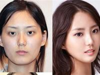 A new collection of BEFORE and AFTER photos of Korean Plastic Surgery. Unbelievable!