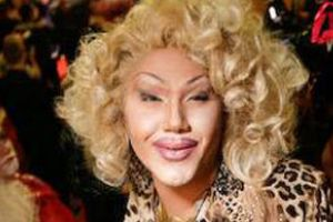 What Girl Do to Have a Luscious Lips But Gone Wrong! (15 pics)