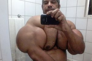 Man Claims To Be A Natural Bodybuilder, With Arms So Big From Synthol That It Looks Like Tumours!
