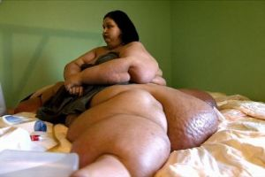 This Woman Weighs a Thousand Pounds and Now You Won't Believe How She Looks Now!