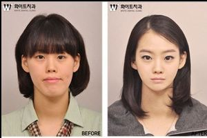 30 Startling Before and After South Korean Plastic Surgery Pictures