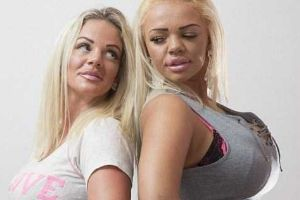 Mother and Daughter Who Clearly Overused Plastic Surgery (9 photos)