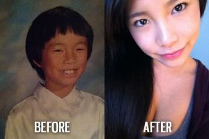 Ugly Duckling Syndrome. What are your best before and after puberty photos? (54 pics)