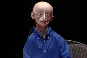 17 year-old gives out the secret to happiness, shortly before passing away.