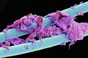 Everyday Things That Are Fascinating Under A Microscope. BLOW YOUR MIND? (23 pics)