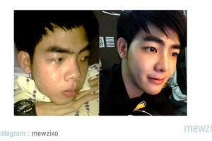 You might be shocked to see the whole plastic surgery process from this guy from Thailand (16 pics)